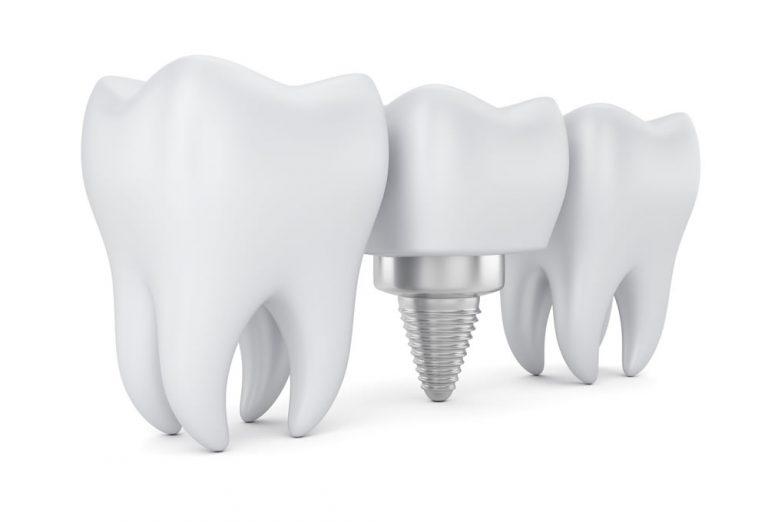 Wszystko o implantach zębów