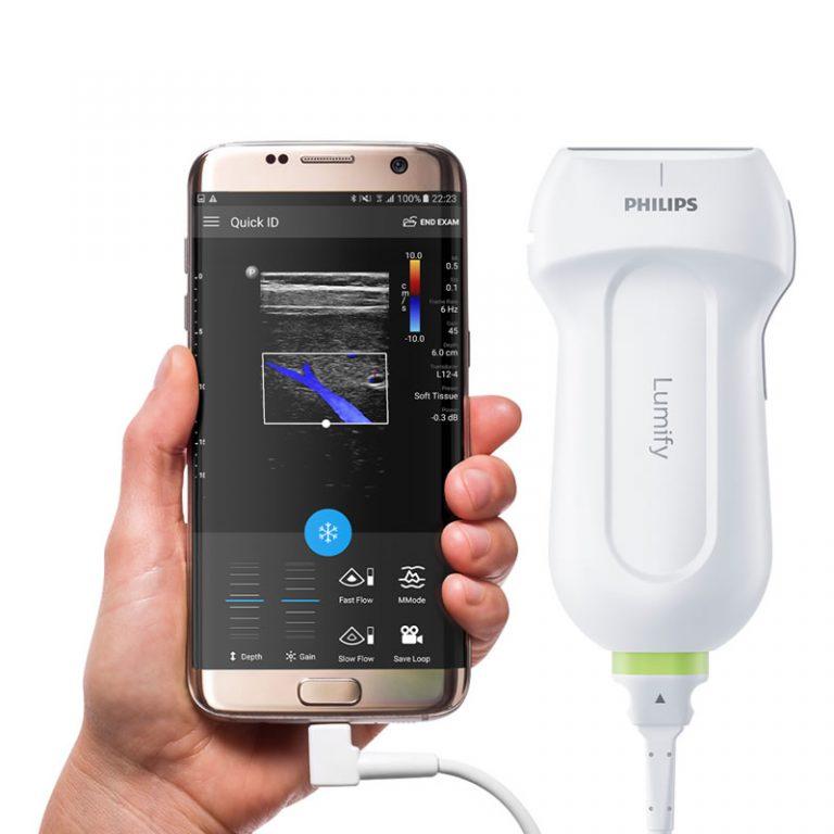 Lumify – kompletne USG w smartfonie!
