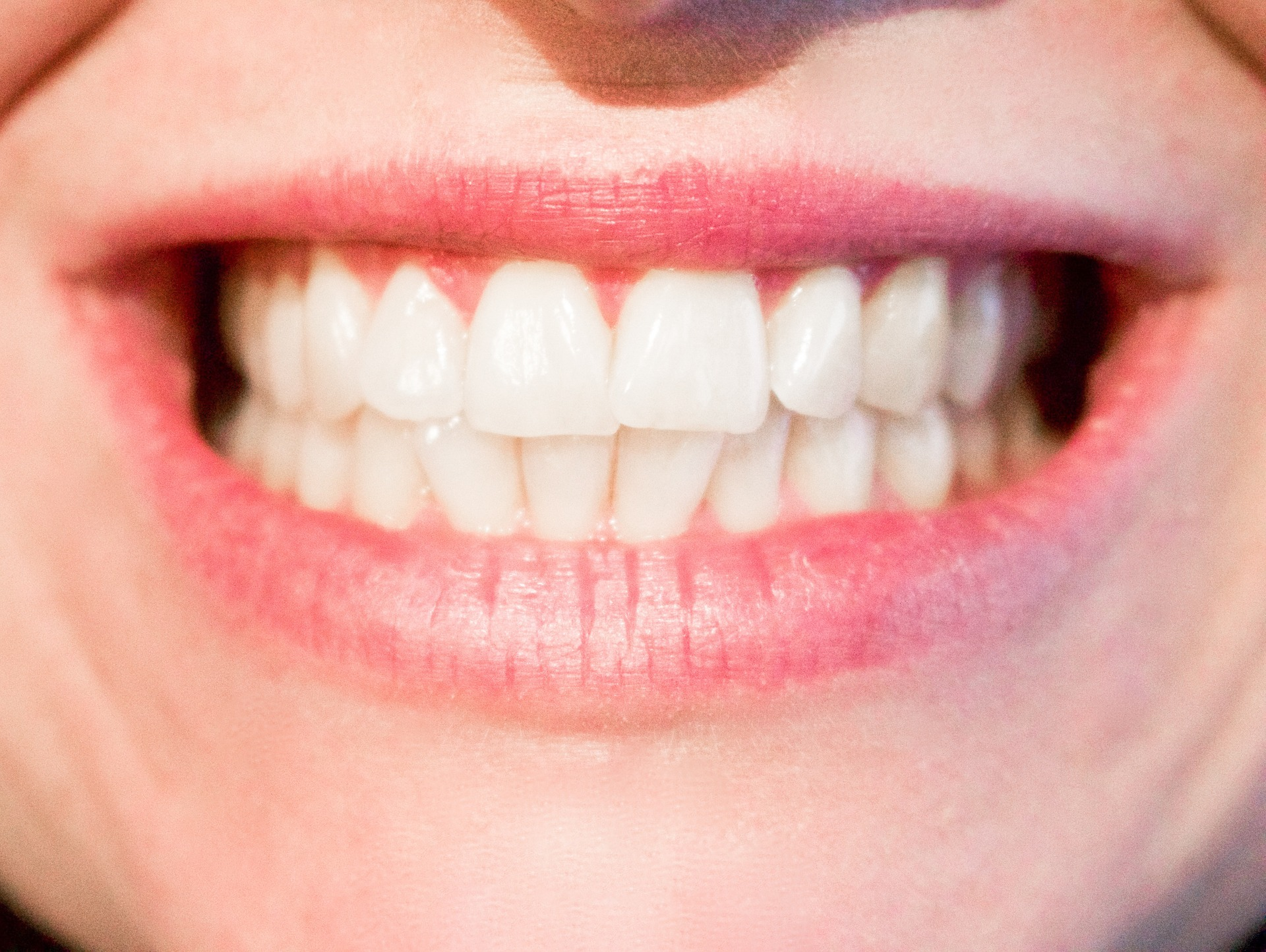 Implanty zębowe - kiedy powinieneś o nich pomyśleć?